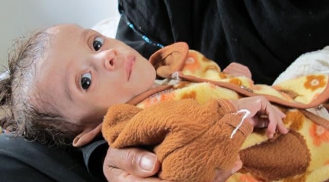 Yemende Felakete Az Kaldı