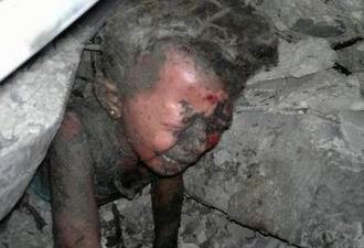 Suriye'den Dayanılmaz Görüntüler (VİDEO)