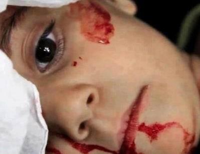 Çocuklar Esed'in Zulümlerini Anlattı