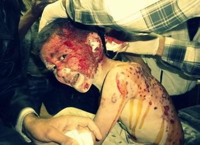 Suriye'de Yine Kimyasal Silah İzleri