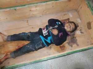 Suriye'de 142 Kardeşimiz Daha Katledildi