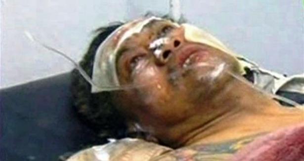 Rehine Operasyonu: 32 Direnişçi ve 23 Rehine Öldü