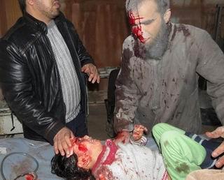 Katil Uçaklar Suriyelileri Diri Diri Yaktı!
