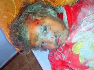 Suriye'de Dün 112 Kardeşimiz Katledildi (VİDEO)