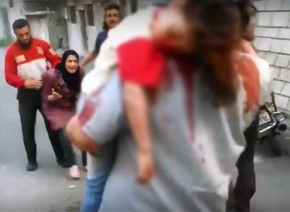 Küçük Kızını Kanlar İçinde Görünce… (VİDEO)