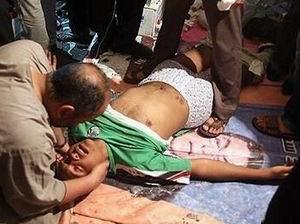 Mısır'daki Katliamdan Çarpıcı Fotoğraflar