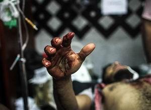 Mısır'da Katliam: Ölü Sayısı 200 Oldu (FOTO-VİDEO)