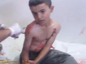 Suriye'de 118 Kardeşimiz Katledildi (VİDEO)