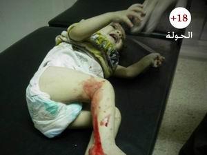 Suriye'de 8 Aylık Bilanço: 35 Bin 552 Ölü (VİDEO)