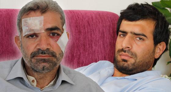 Kurban Derisi Toplayanlara Satırlı Saldırı