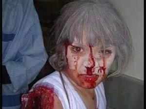 Kuşatma Altındaki Humus'ta Çocuklar Hedef Alındı