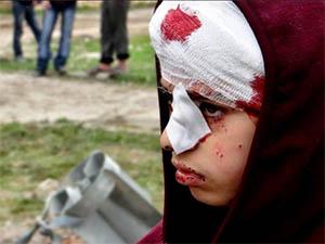 Halep İçin Acil Tıbbi Yardım Listesi