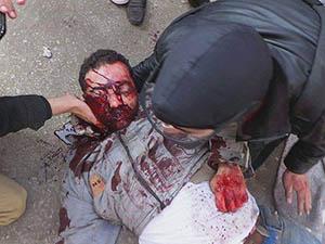 Mısır'da Cunta Katliama Devam Ediyor! (VİDEO)