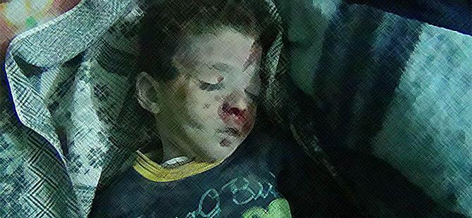 Suriye'deki İşkencelerin Tanıkları Hazır Bekliyor