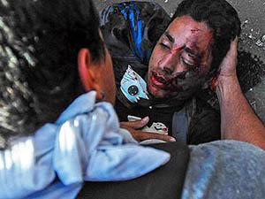 Venezuela'da Hükümet Karşıtı Gösteriler: 3 Ölü, 23 Yaralı