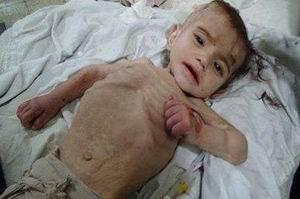 Suriye'deki Savaş 6 Milyon Çocuğu Etkiledi!