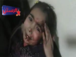 Suriye'de 87 Kardeşimiz Daha Katledildi (VİDEO)