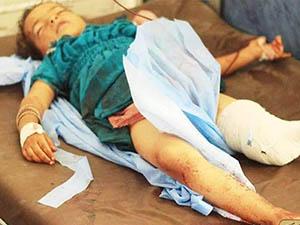 """BM Fark Etti: """"Suriye'de Çocuk Olmak Zor"""""""