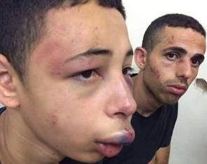 Filistinli'ye İşkencenin Karşılığı 45 Gün Kamu Hizmeti