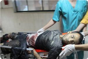 Siyonist Saldırılarda Şehit Olan Kardeşlerimizin Sayısı 187 Oldu