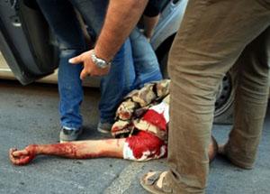 Halep'te AA Ekibine Roketli Saldırı (FOTO)