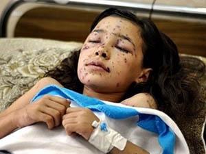 9 Yaşındaki Dinanın Gözleri Siyonist Mermiyle Kapandı
