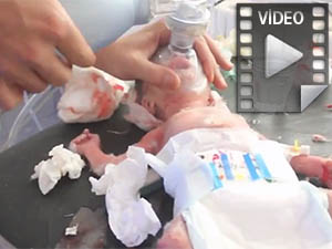 Yaralı Bebeğin Hayata Tutunma Çabası