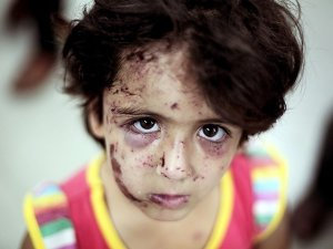 370 Binden Fazla Çocuğun 'Psiko-Sosyal' Yardıma İhtiyacı Var