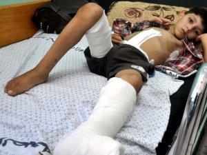 Gazze'de 'Yasaklı Silah' Şüphesi