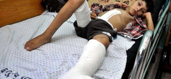 Gazze'de Bin Çocuk Ömür Boyu Sakat Kalacak