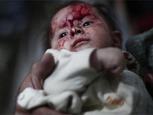 Suriye'de 22'si Çocuk 121 Şehit (FOTO)