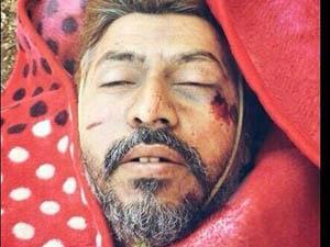 ABD Türkiyeli Direnişçileri Vurdu