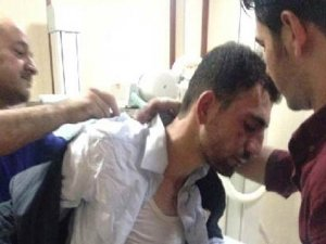 Kürt Irkçıları RÛDAW Muhabirlerini Bıçakladı