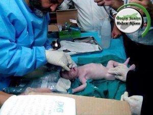 Şehit Olan Annenin Karnındaki Bebek Mucizesi!