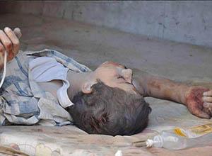Beşşar Esed, Suriye'de 65 Cana Daha Kıydı!