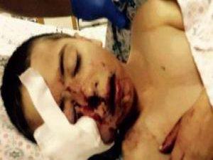 Siyonis Güçler 5 Yaşındaki Muhammed'i Yüzünden Vurdu