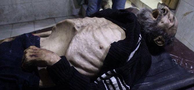 Esed'in Bombaları ve Açlık Öldürüyor!