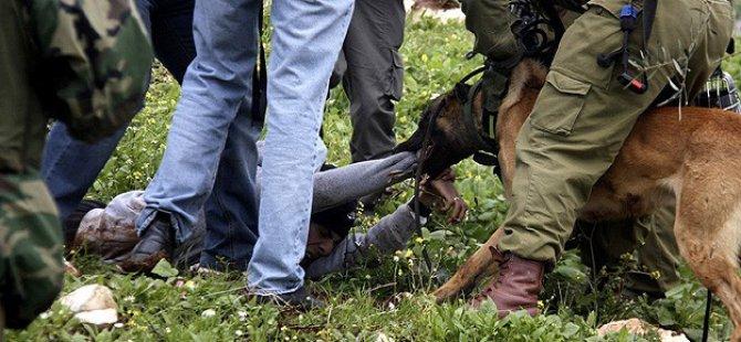 Siyonistler Köpekli İşkenceyi Geçici Olarak Durdurdu
