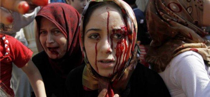Dünya, Suriye ve Halkını Yüzüstü Bıraktı!