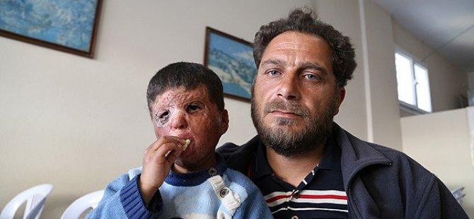 Küçük Mustafa Esed Zulmünün İzini Yüzünden Silmek İstiyor