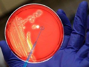 ABD Yanlışlıkla Canlı Şarbon Bakterisi Göndermiş