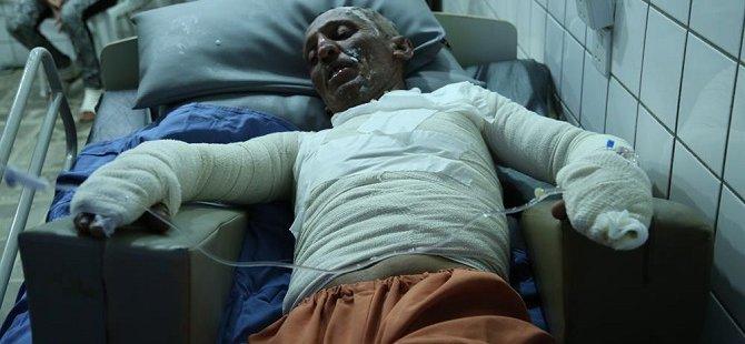 PKK Oğlunu Kaçırınca Kendini Yaktı