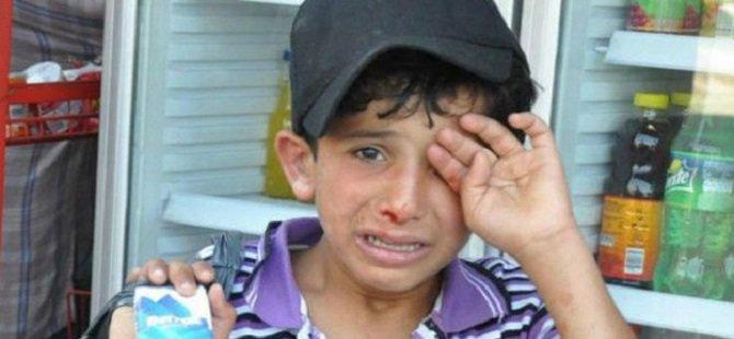 Suriyeli Çocuğu Linç Edenlere Yasal İşlem