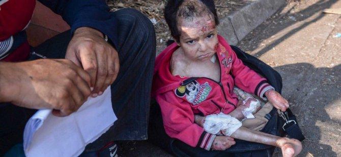 Avrupa'nın Vicdanına Dokunan Çocuk