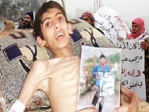 Hizbullah'ın Mayınlı Kuşatması Madaya Halkını Öldürüyor