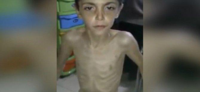 Madaya'daki Kardeşlerimizi Aç Bırakarak Öldürüyorlar!