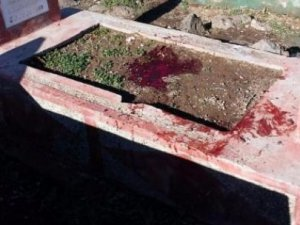 Patlayıcı İnfilak Etti: 2 Çocuk Ağır Yaralı