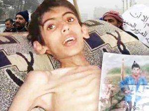 Madaya'da 13 Bin Çocuk Ölüm Tehlikesiyle Karşı Karşıya!