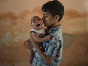 Brezilya'da Zika Salgını: Engelli Doğan Bebek Sayısı Artıyor