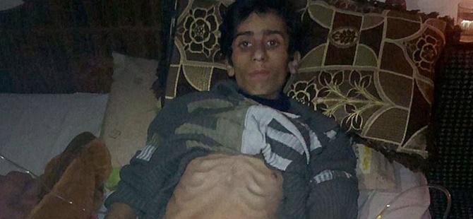 Madaya'da Esed ve Hizbullah Zulmü Sürüyor: 2 Kişi Daha Hayatını Kaybetti!